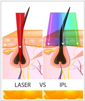 What Is Laser Hair Removal Treatment Viva Concept