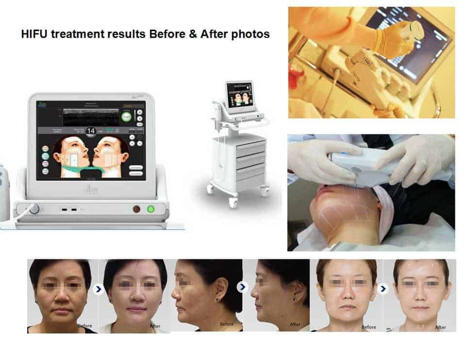 Best HIFU machines - VIVA Concept Technology Co , Ltd