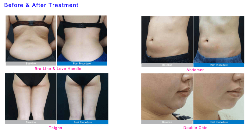 cryolipolysis before and after