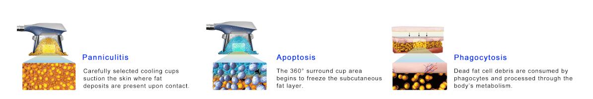 cryolipolysis procedure