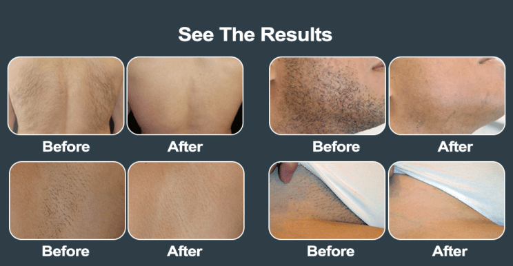 diode laser hair removal results before and after