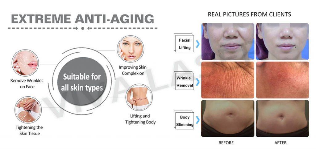 3D facial HIFU treatment