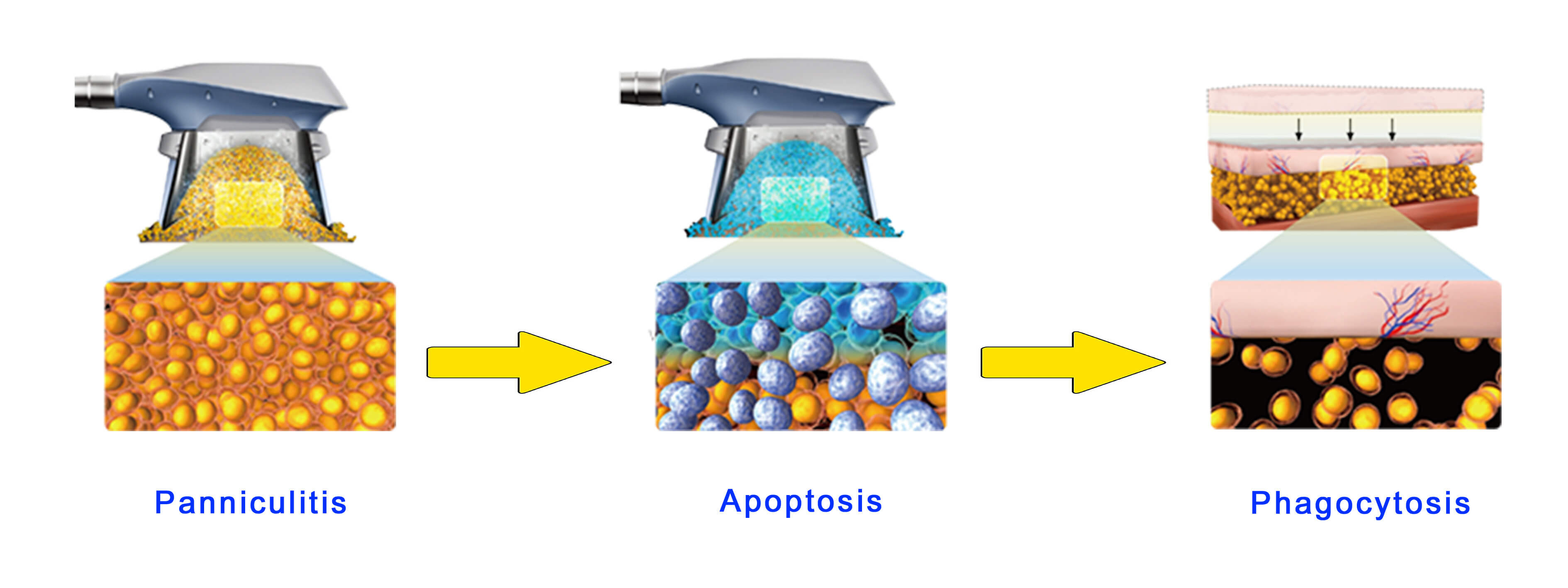 Mechanism for freezing fat removal